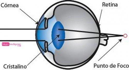 La ambliopía popularmente ojo vago