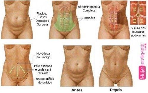 vientre plano abdominoplastia
