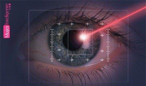 La miopía y su corrección